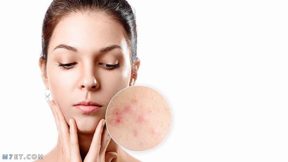 ارتفاع هرمون التستوستيرون عند النساء