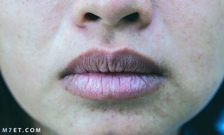 التخلص من الاسمرار حول الفم