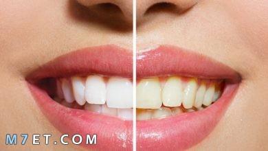 Photo of اسهل طريقة لتبييض الاسنان في المنزل