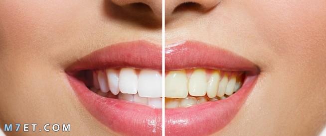 افضل خلطة لتبييض الاسنان