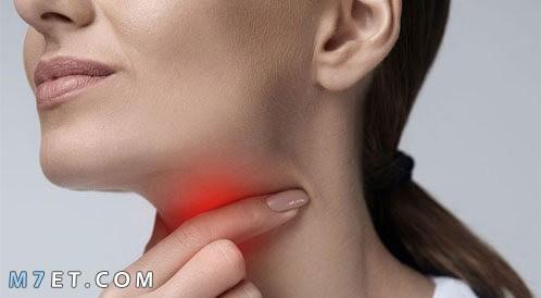 التهاب بكتيري في الحلق