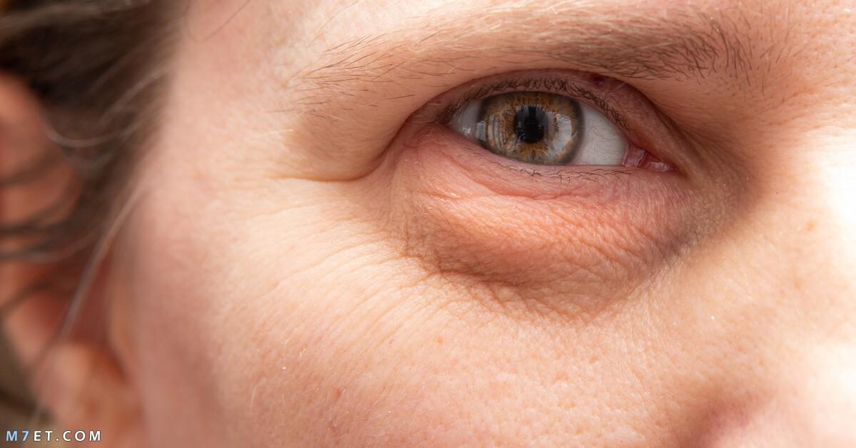 الانتفاخ تحت العين