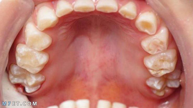 أضرار ومضاعفات الجزّ على الأسنان 2021