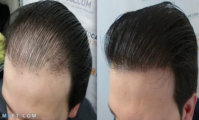 أضرار زراعة الشعر
