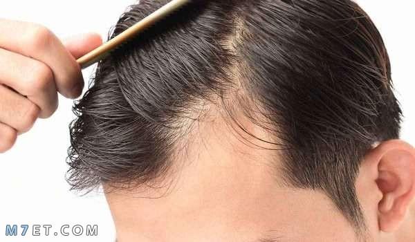 اسباب تساقط الشعر من الامام