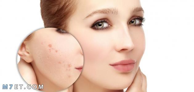 آثار الحبوب في الوجه