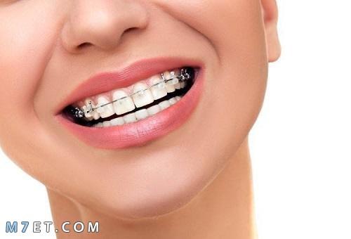 أنواع تقويم الأسنان