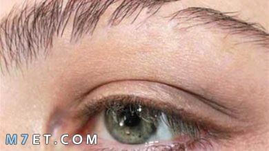 Photo of أسباب تساقط شعر الحواجب وطرق العلاج طبيًا وطبيعيًا