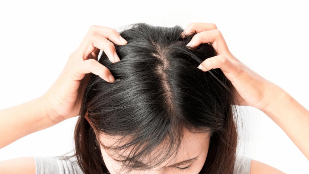 أسباب قمل الشعر