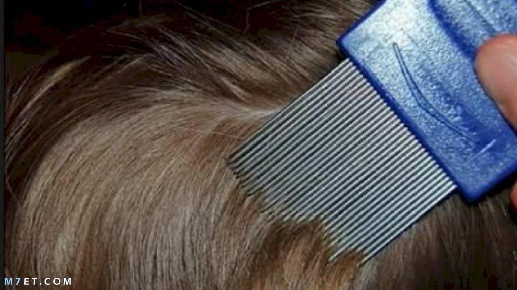 قمل الشعر وطرق علاجه