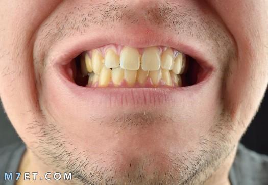 كيف تبيض اسنانك بسرعة