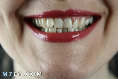 كيف نحافظ على بياض الأسنان باستخدام طرق طبيعية