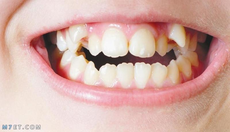 كيف يعمل تقويم الأسنان و طريقه تركيبه