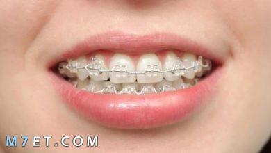 Photo of كيف يعمل تقويم الأسنان وطريقه تركيبه الصحيحة وأنواعه