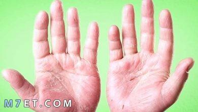 Photo of ما سبب تقشر الجلد وكيفية العلاج نهائيًا بالأعشاب