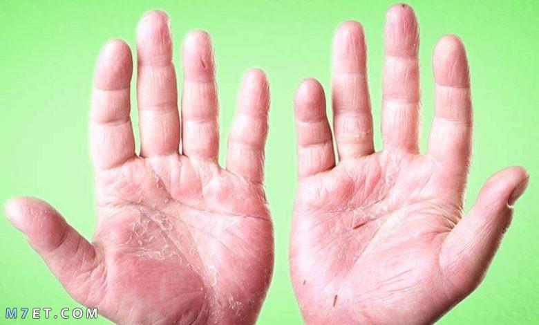 ما سبب تقشر الجلد