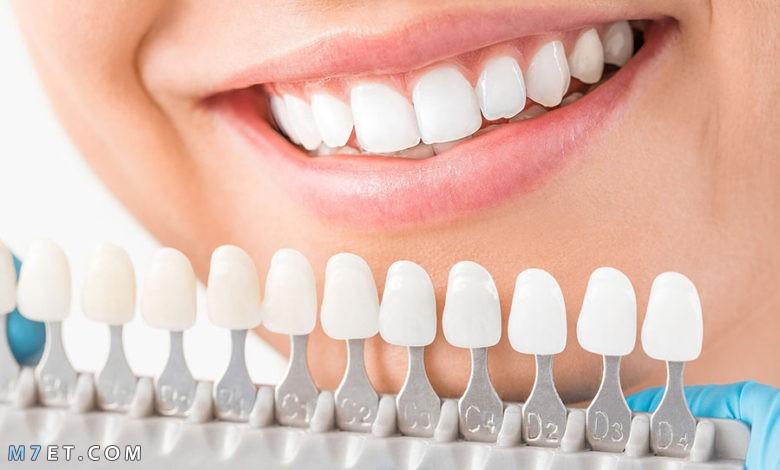 الفرق بين زراعة الأسنان وتركيب الأسنان