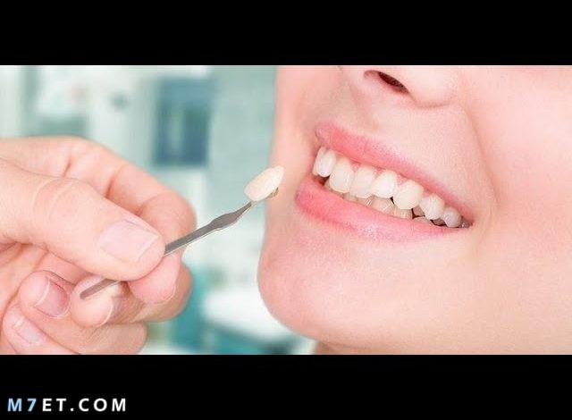 ما هو حشو الأسنان الذي يجعل ابتسامتك مثل ابتسامة نجمات هوليود