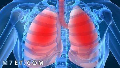 Photo of ما هي امراض الرئة والأعراض المصاحبة لها