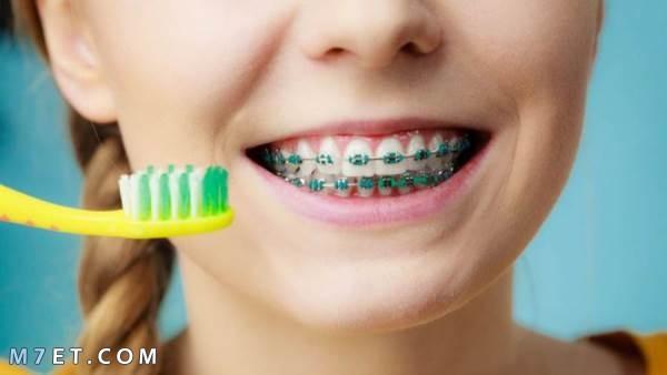 العناية بنظافة تقويم الأسنان
