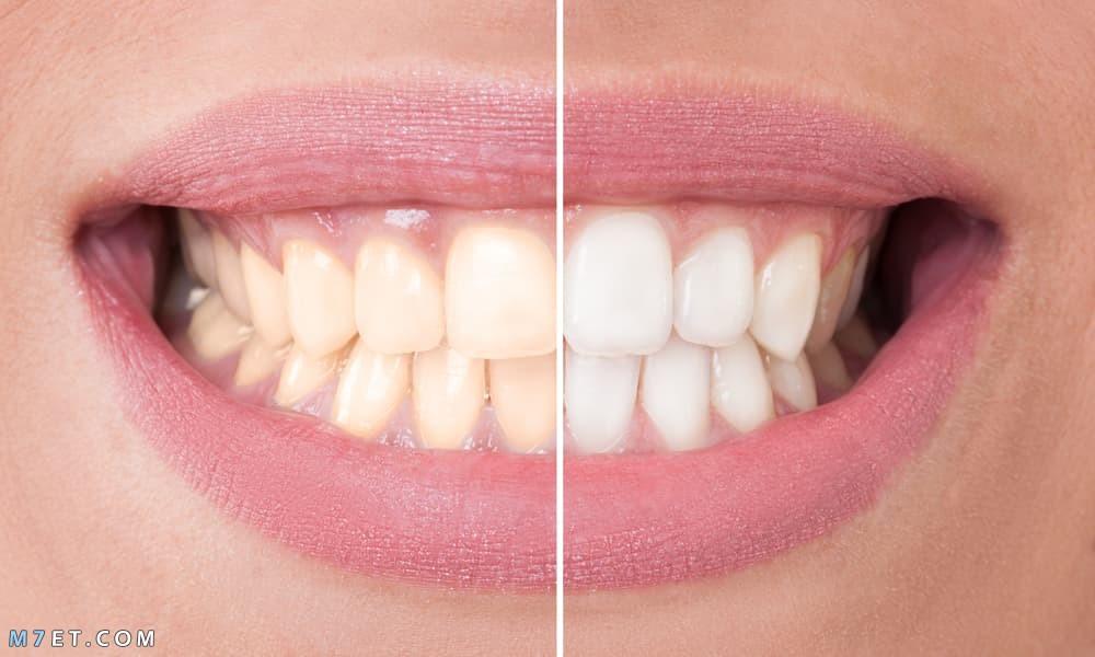 كيفية تبييض الاسنان بالليزر