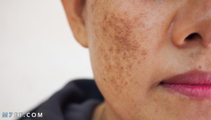 كيف أزيل البقع السوداء من الوجه