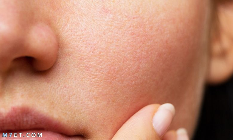 افضل علاج مسامات الوجه