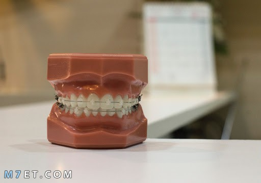 تقويم الأسنان | فوائد واستخدامات