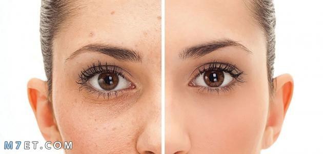 علاج تصبغات الوجه بالليزر