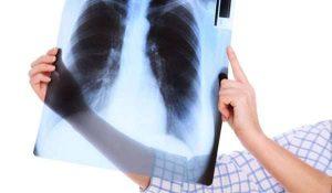أسباب التهاب القصبة الهوائية وطرق العلاج بالتفصيل