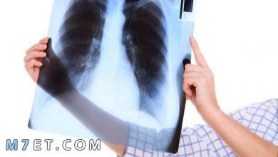 Photo of أسباب التهاب القصبة الهوائية وطرق العلاج بالتفصيل