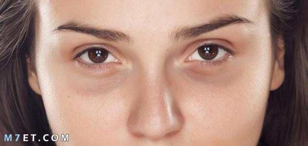 علاج السواد تحت العين