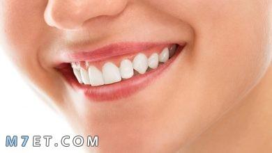 Photo of فوائد وأضرار تبييض الأسنان