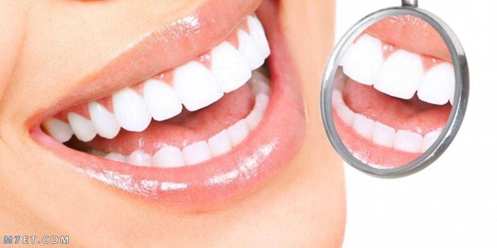الصوديوم لتبييض الأسنان