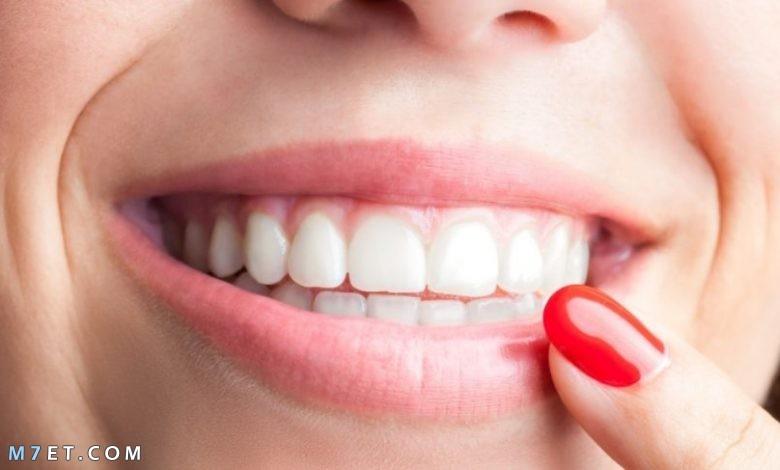 تبييض الأسنان ببيكربونات الصوديوم