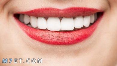 Photo of كيفية الحصول على أسنان بيضاء