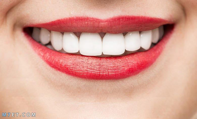 كيفية الحصول على أسنان بيضاء