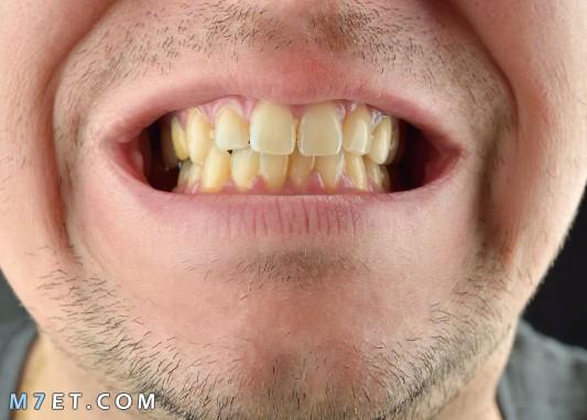كيف ابيض اسناني بالمنزل