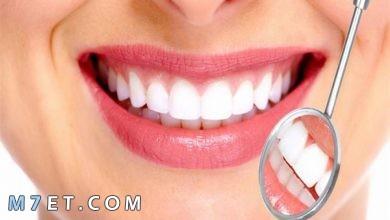 Photo of كيف تبيّض الأسنان في المنزل في يومٍ واحد فقط!