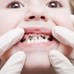 كيف تتجنب تسوس الأسنان وما الوقت المناسب للذهاب إلى الطبيب