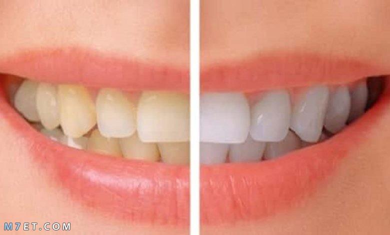 كيف تتخلص من صفار الأسنان