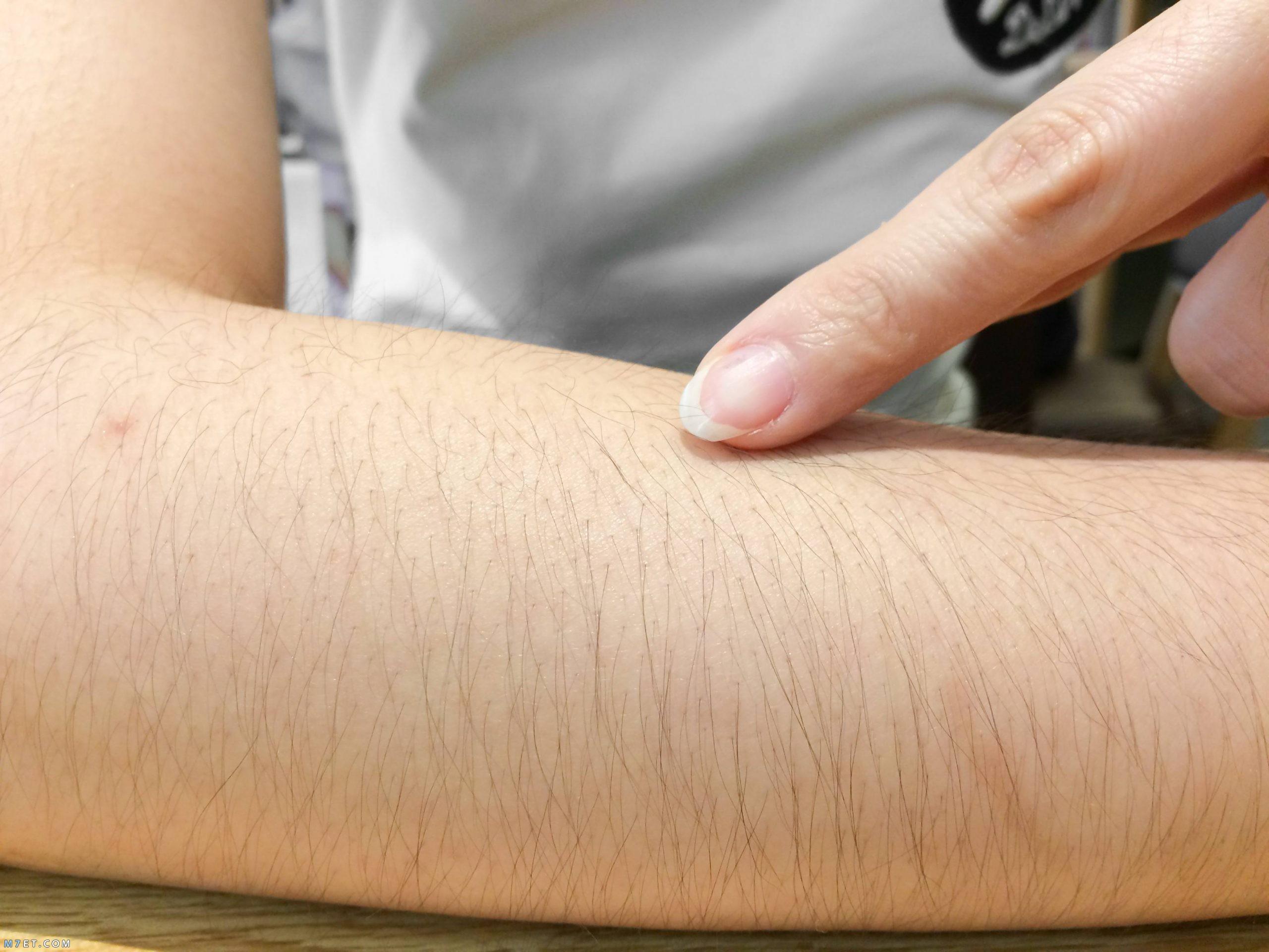 تشقير شعر الجسم