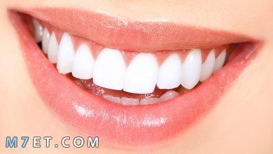 Photo of كم يدوم تبييض الاسنان واضرار التبييض بشكل مستمر