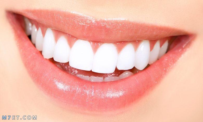 كم يدوم تبييض الاسنان
