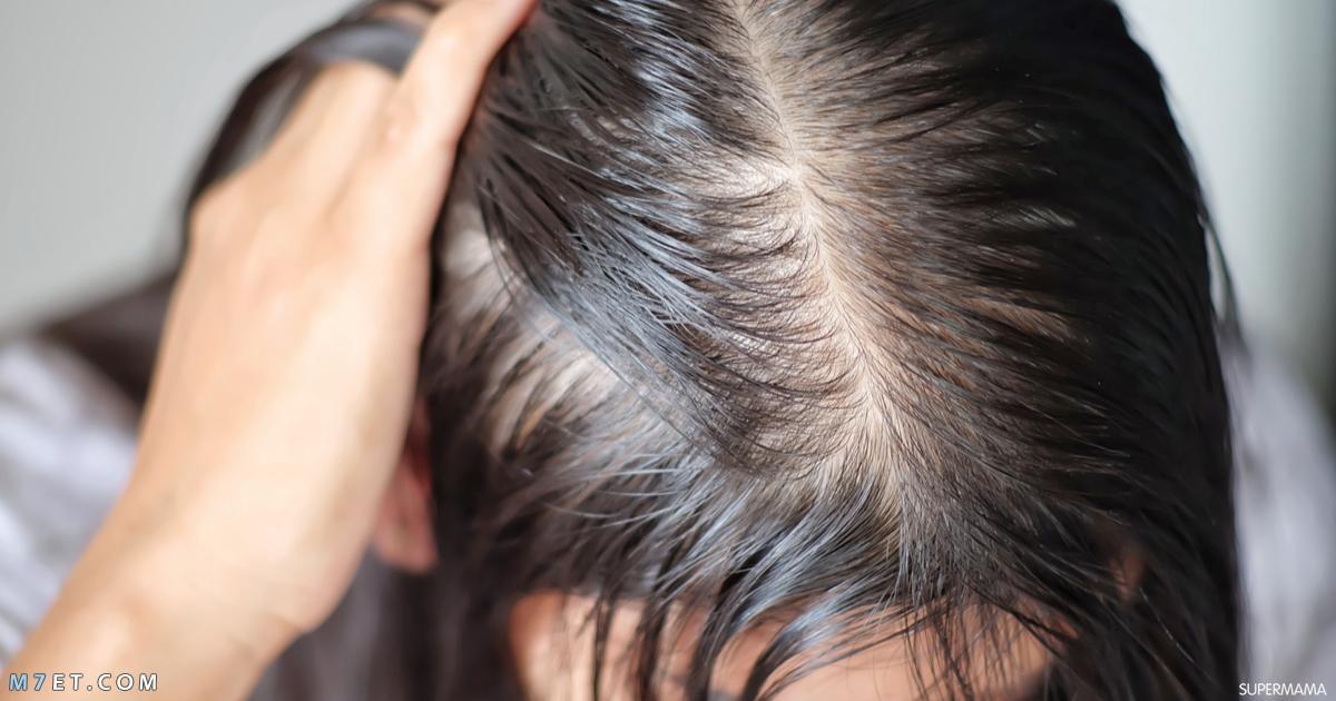 طريقة علاج الشعر الخفيف