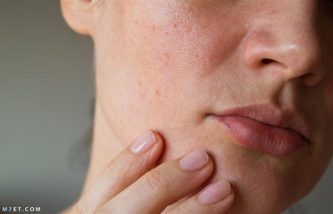التخلص من دهون الوجه