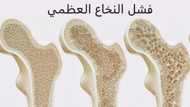 Photo of أعراض فشل النخاع العظمي وأشهر 7 طرق للعلاج
