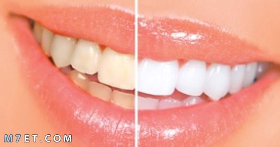 أسباب تغيّر لون الأسنان