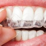 طريقة لتبييض الاسنان في يوم واحد