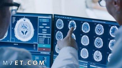 Photo of أعراض التهاب الدماغ الحاد المنتشر والفرق بينه وبين التهاب السحايا